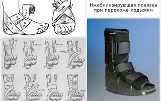 Как разрабатывать ногу после перелома лодыжки после снятия гипса, массаж