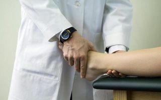 Перелом голеностопа без смещения и со смещением: сколько ходить в гипсе