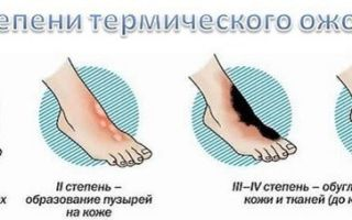 Термические повреждения: симптомы, первая помощь и профилактика