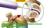 Уколы от боли в спине: название лекарств для блокады