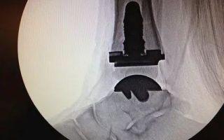 Реабилитация после перелома лодыжки без смещения и со смещением