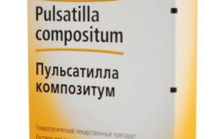Гомеопатия от головной боли: гомеопатические препараты, средства