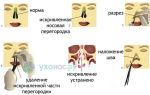 Перелом носа: степень тяжести вреда здоровью, открытый, закрытый