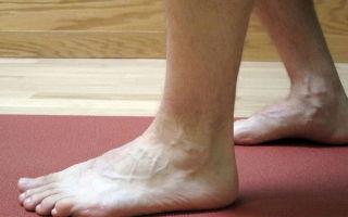 Растяжение связок стопы: лечение в домашних условиях, как лечить