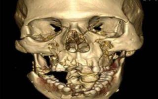 Сочетанная и комбинированная травма скелета и головы