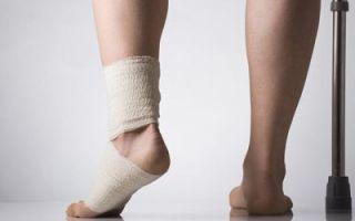 Разрыв связок голеностопного сустава: частичный, сколько заживает