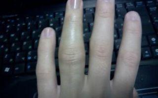 Сильный ушиб пальца на руке: чем лечить