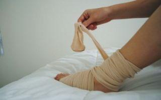 Ушиб ноги: симптомы и лечение в домашних условиях