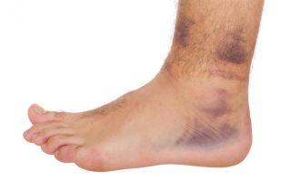 Ушиб мягких тканей головы или ноги: первая помощь и лечение
