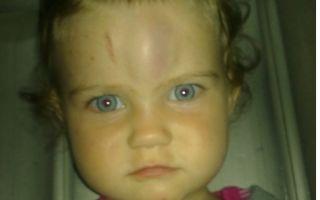 Сотрясение мозга у ребенка: симптомы