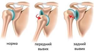 Чрезмыщелковый перелом плечевой кости: у детей, закрытый