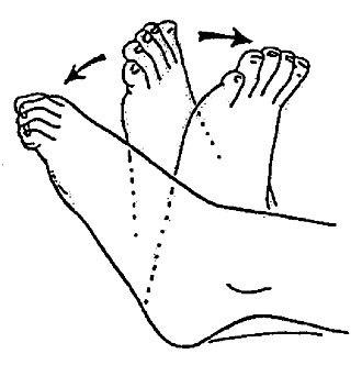 Эндопротезирование коленного сустава: реабилитация после операции