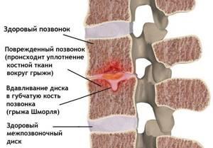 Грыжа грудного отдела позвоночника: симптомы и лечение, Шморля