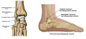 Резкая боль в голеностопном суставе без травмы: в состоянии покоя и в движении