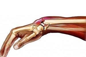 Растяжение связок на ноге: что делать, стопы, курс лечения, мазь