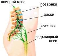 Боли в пояснице: причины и лечение, что делать, если болит спина