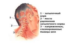 Немеет лицо при остеохондрозе: шейном, что делать