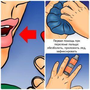 Перелом мизинца на руке: сколько заживает, сколько носить гипс