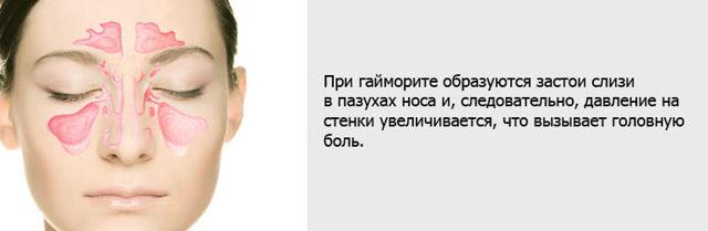 Головная боль при гайморите: болит голова, причины