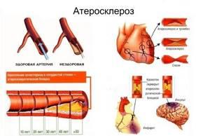 Головная боль в области лба и висков: причины и лечение, что делать