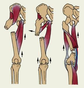 Перелом диафиза бедренной кости: диафизарный, лечение