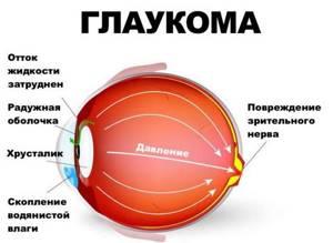 Болят глаза: как будто давят, изнутри, давящая боль