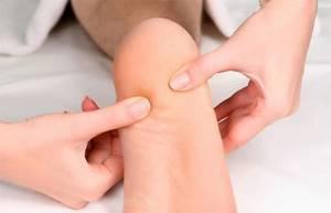 Почему немеют пятки на ногах: причины и лечение, как лечить