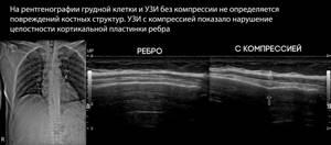 Травмы грудной клетки: классификация, закрытые, открытые