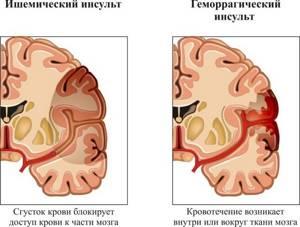 Пульсирующая боль в правой части головы: стороны, в одном месте