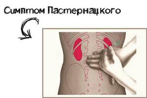 Болят почки: симптомы, чем лечить, что делать в домашних условиях