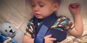 Перелом ключицы со смещением: у детей, восстановление, симптомы