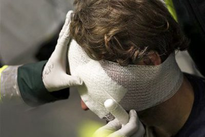 Последствия травмы головы со временем: ЧМТ головного мозга спустя годы