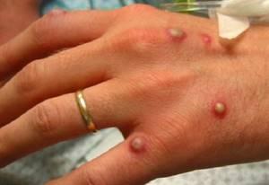 Аллергия на пальцах рук и пузырьки: лечение, чем лечить