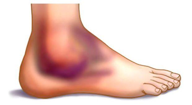 Восстановление после растяжения связок голеностопа: реабилитация