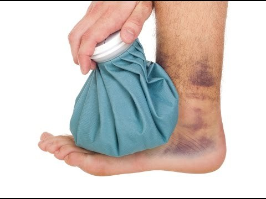 Как снять отек после операции на ноге: после перелома, в домашних условиях
