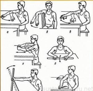 Вывих локтевого сустава: восстановление амплитуды движения, локтя