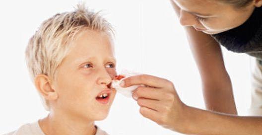 Перелом носа у ребенка: симптомы, признаки