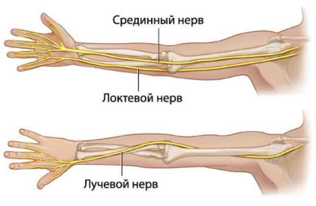 Немеет левая рука от локтя до пальцев: причины, лечение