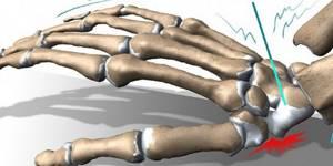 Упражнения после перелома лучевой кости: ЛФК, осложнения
