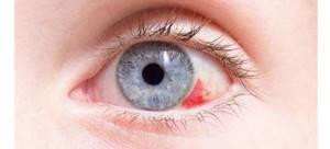 Лопнул сосуд в глазу и болит глаз: что делать, причины