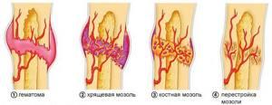 Сколько заживает перелом ребер: проходит, срастается