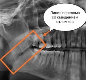 Перелом челюсти: сколько заживает, заживление, время, как долго