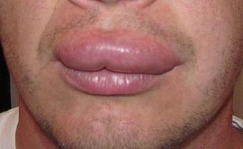 Немеет верхняя губа и под носом: почему онемела, причины