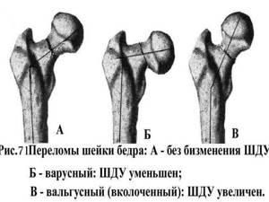 Закрытый перелом правой бедренной кости: со смещением, помощь