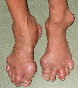 Опух палец на ноге без причины и болит: распух, что делать