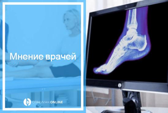 Перелом лодыжки без смещения: симптомы и лечение перелома наружной лодыжки