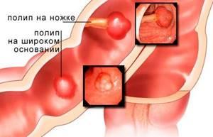 Боль справа внизу живота: у женщин и мужчин, причины