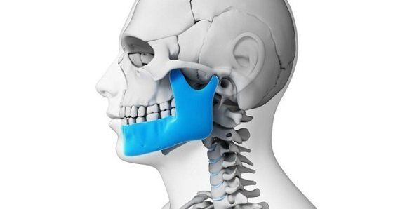 Перелом челюсти: лечение в домашних условиях, как лечить