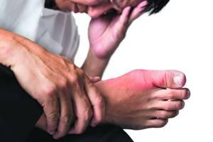 Болит сустав большого пальца на ноге: как лечить, лечение