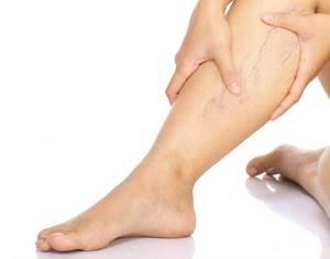 Болят ноги: что делать в домашних условиях, мышцы, вены